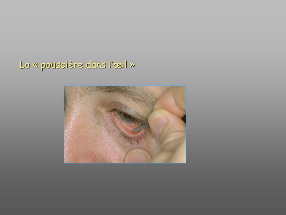 La « poussière dans l'œil »