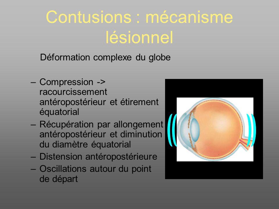 Contusions : mécanisme lésionnel