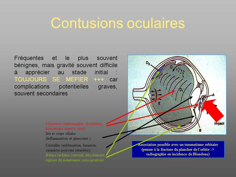 Contusions oculaires