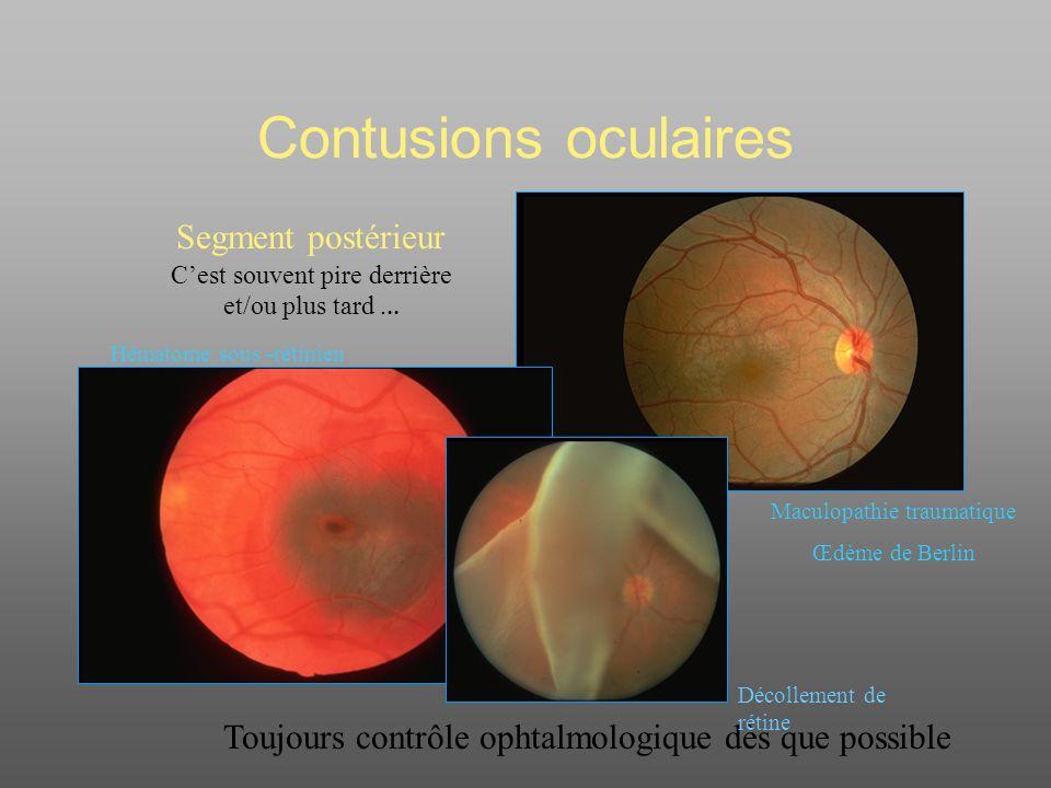 Contusions oculaires Segment postérieur