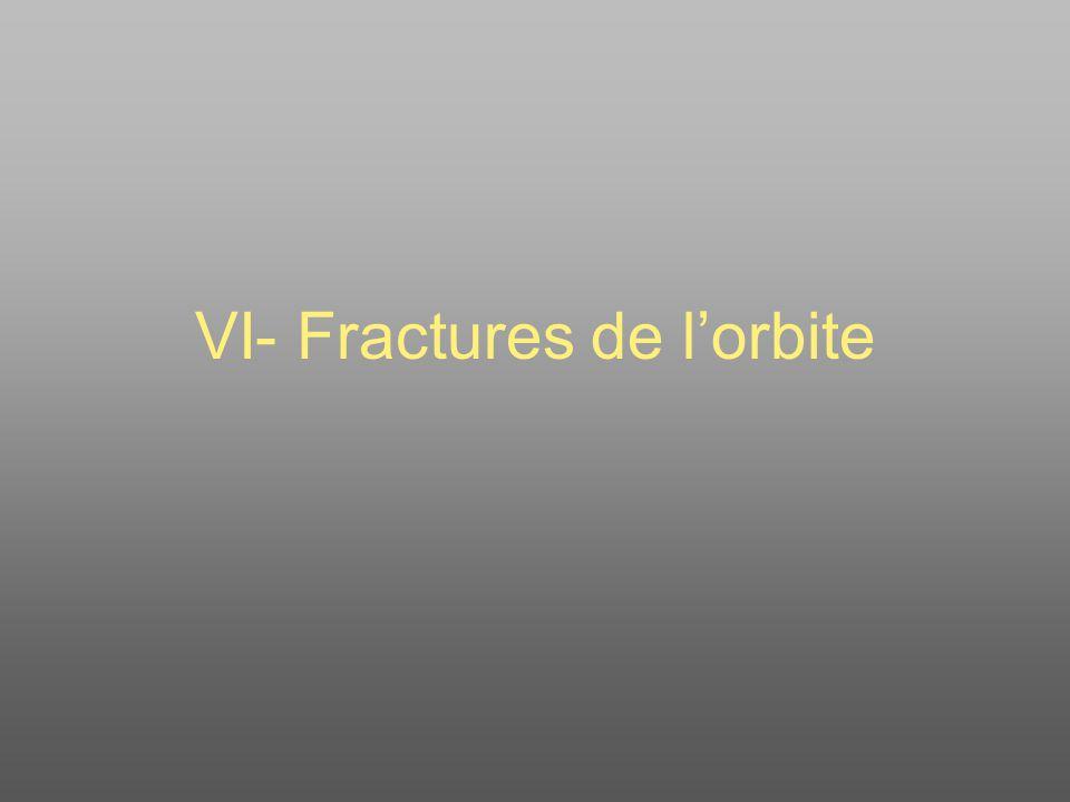 VI- Fractures de l'orbite