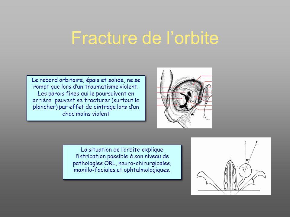 Fracture de l'orbite