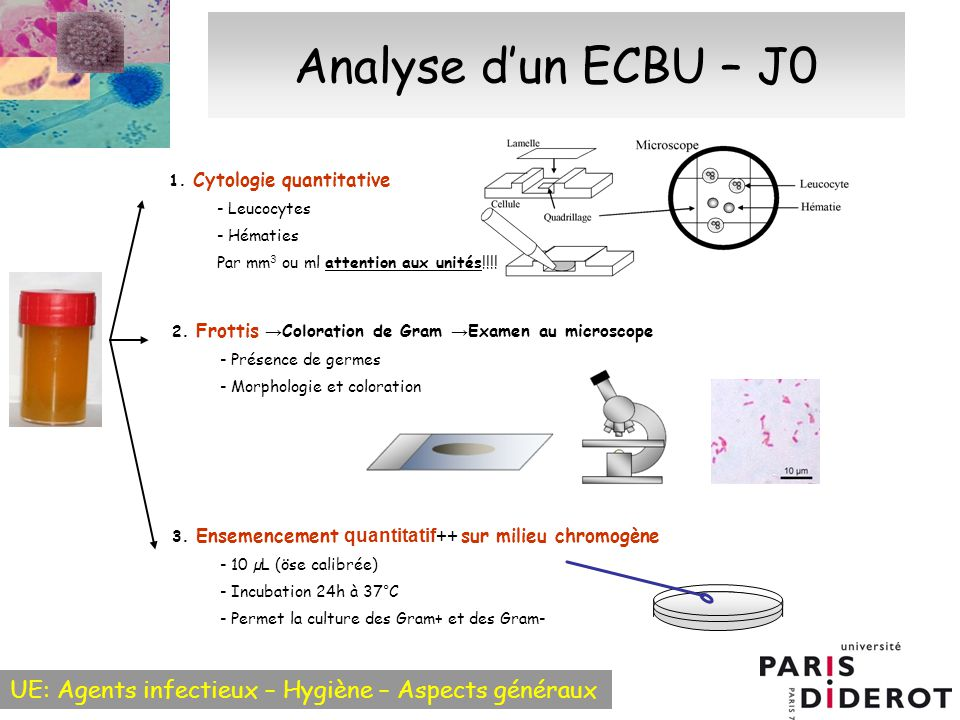 Analyse d'un ECBU – J0 1. Cytologie quantitative - Leucocytes