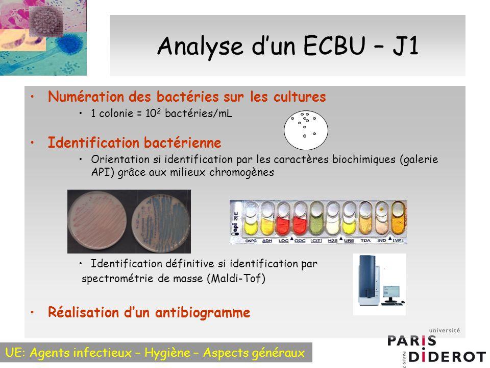 Analyse d'un ECBU – J1 Numération des bactéries sur les cultures