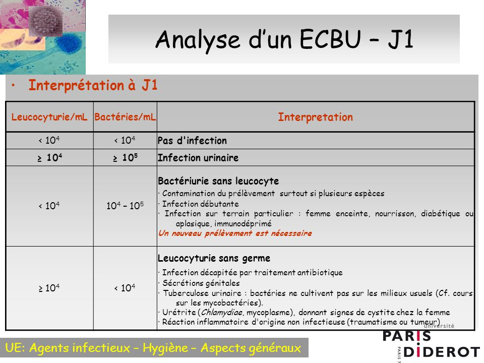 Analyse d'un ECBU – J1 Interprétation à J1 Interpretation