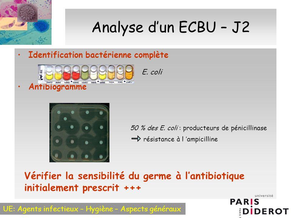 Analyse d'un ECBU – J2 Identification bactérienne complète. Antibiogramme. E. coli. 50 % des E. coli : producteurs de pénicillinase.