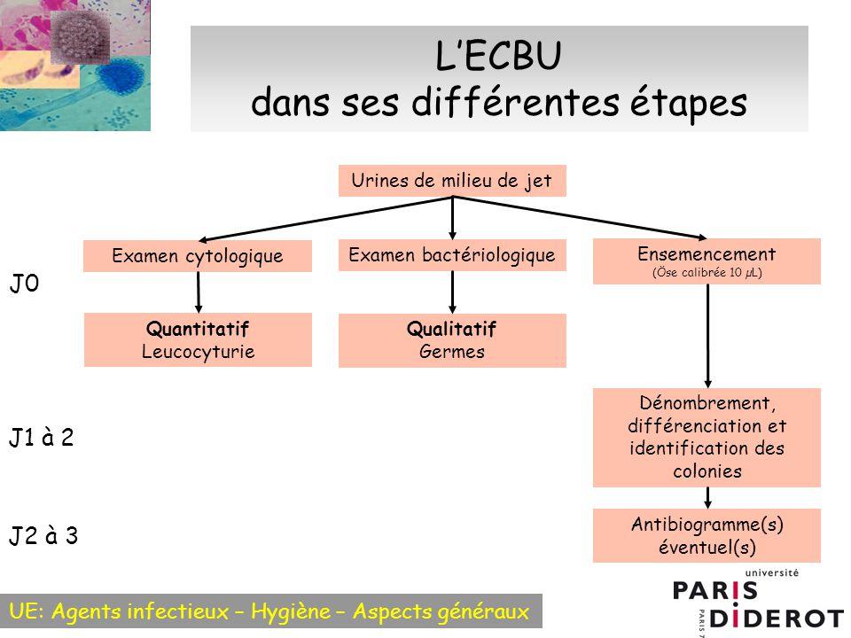 L'ECBU dans ses différentes étapes