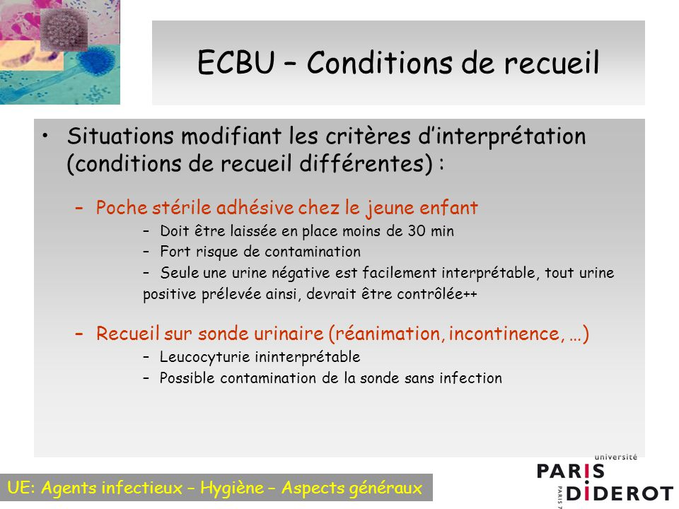 ECBU – Conditions de recueil