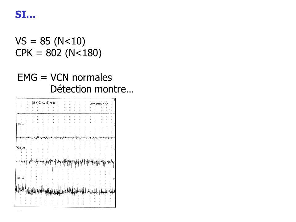 SI… VS = 85 (N<10) CPK = 802 (N<180) EMG = VCN normales Détection montre…