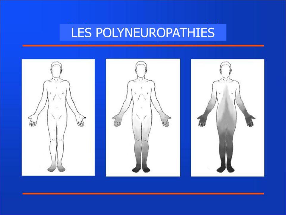 LES POLYNEUROPATHIES