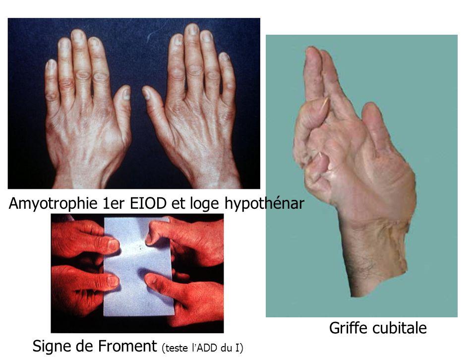 Amyotrophie 1er EIOD et loge hypothénar