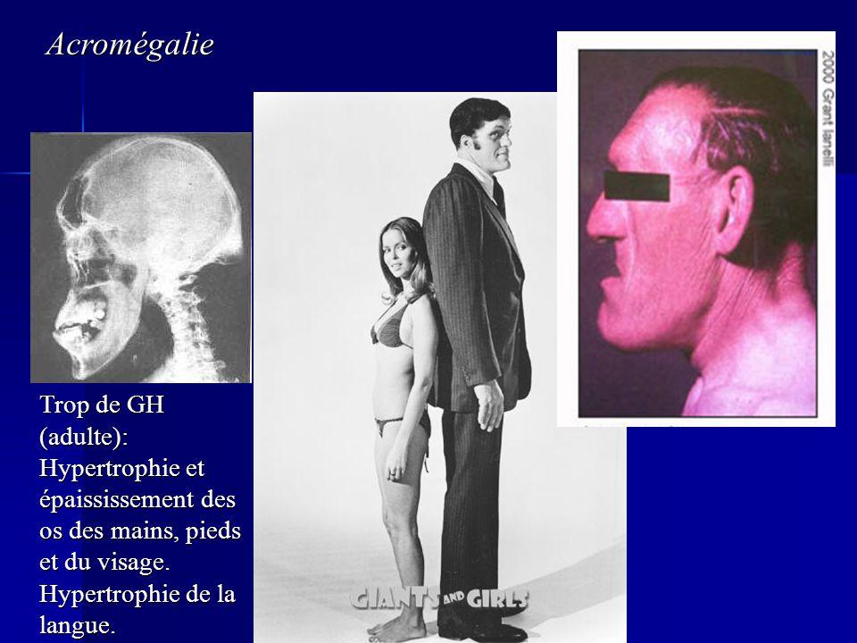 Acromégalie Trop de GH (adulte): Hypertrophie et épaississement des os des mains, pieds et du visage.