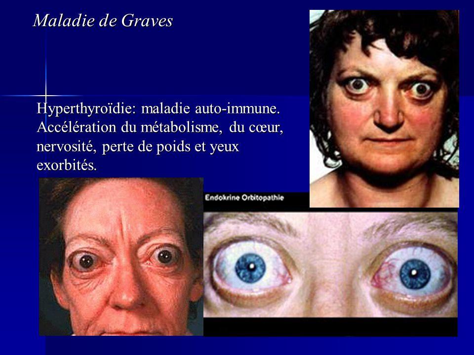 Maladie de Graves Hyperthyroïdie: maladie auto-immune.