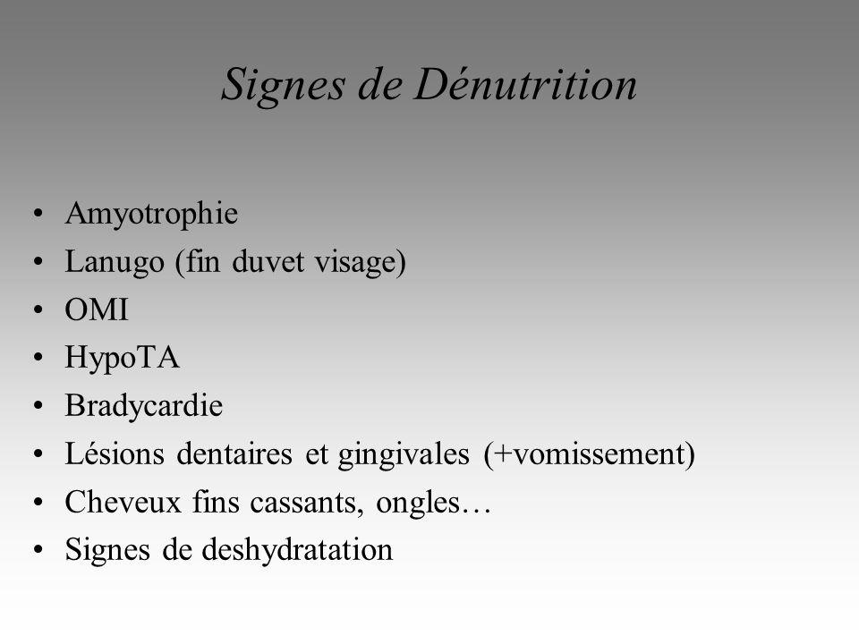 Signes de Dénutrition Amyotrophie Lanugo (fin duvet visage) OMI HypoTA