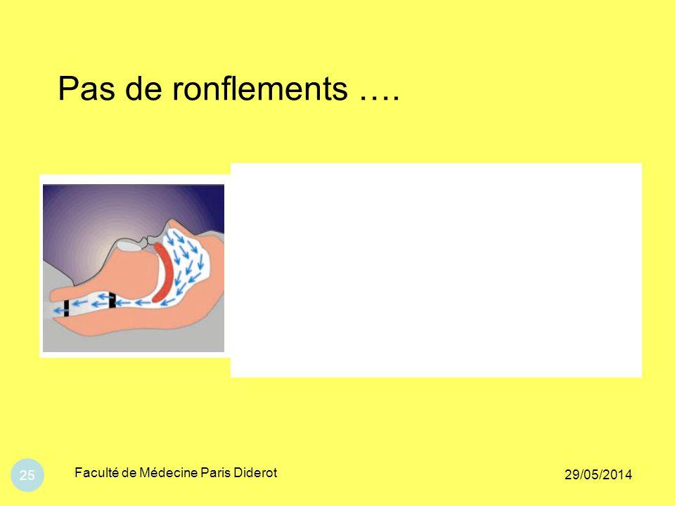 Pas de ronflements …. Faculté de Médecine Paris Diderot 31/03/2017