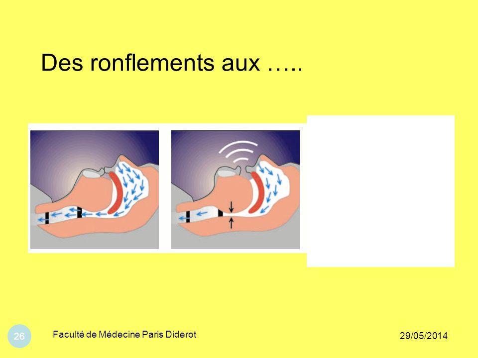 Des ronflements aux ….. Faculté de Médecine Paris Diderot 31/03/2017