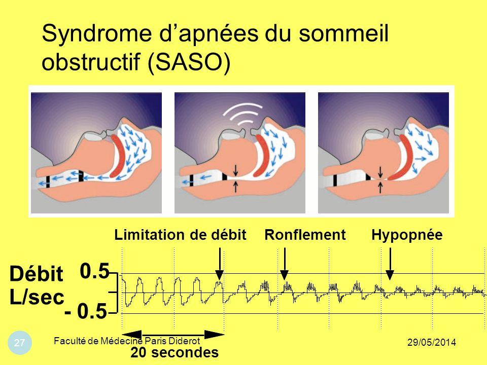 Syndrome d'apnées du sommeil obstructif (SASO)