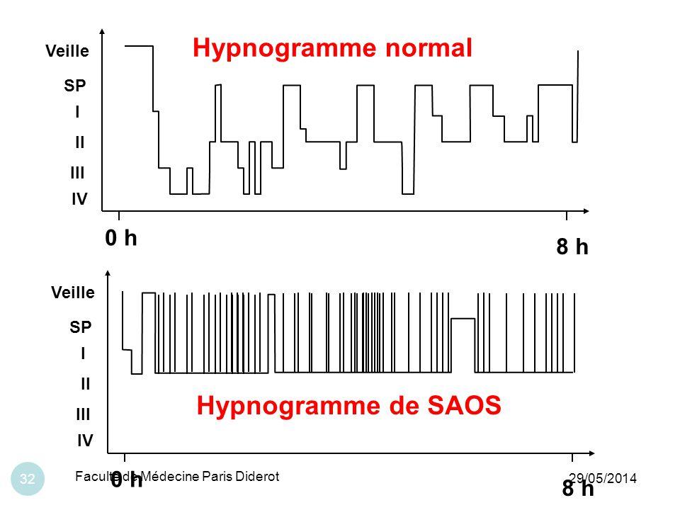 Hypnogramme normal Hypnogramme de SAOS