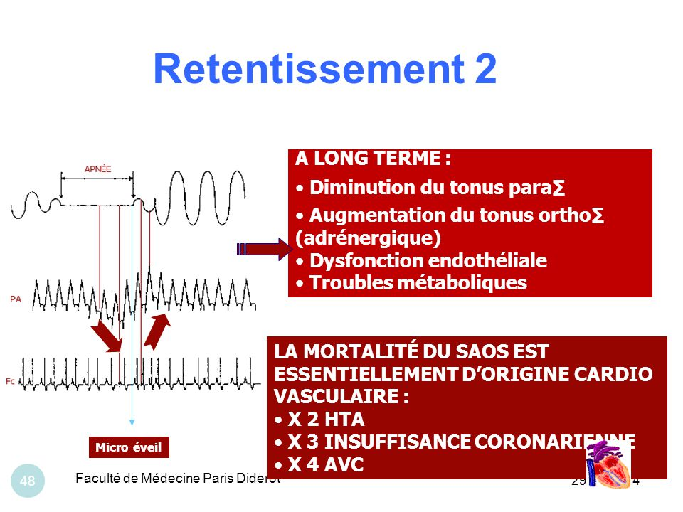 Retentissement 2 A LONG TERME : Diminution du tonus para∑