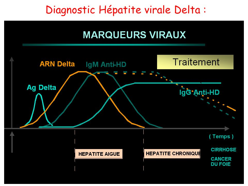 Diagnostic Hépatite virale Delta :