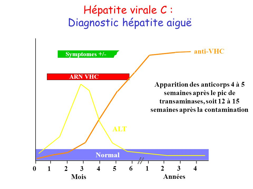 Diagnostic hépatite aiguë