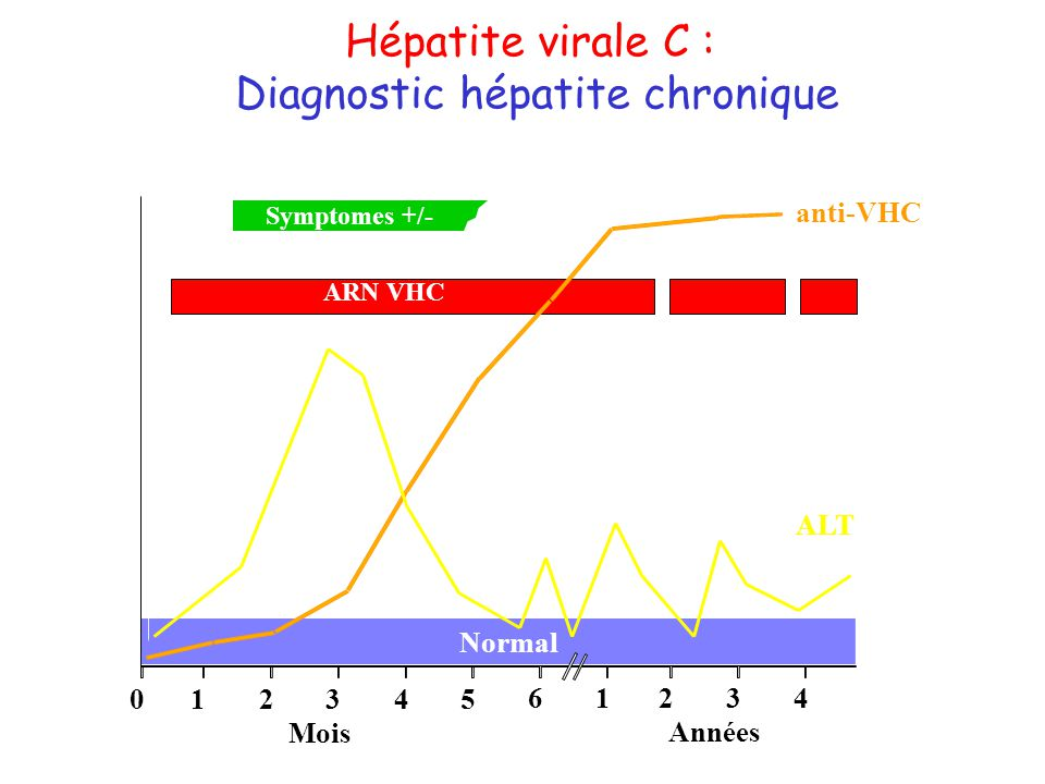 Diagnostic hépatite chronique