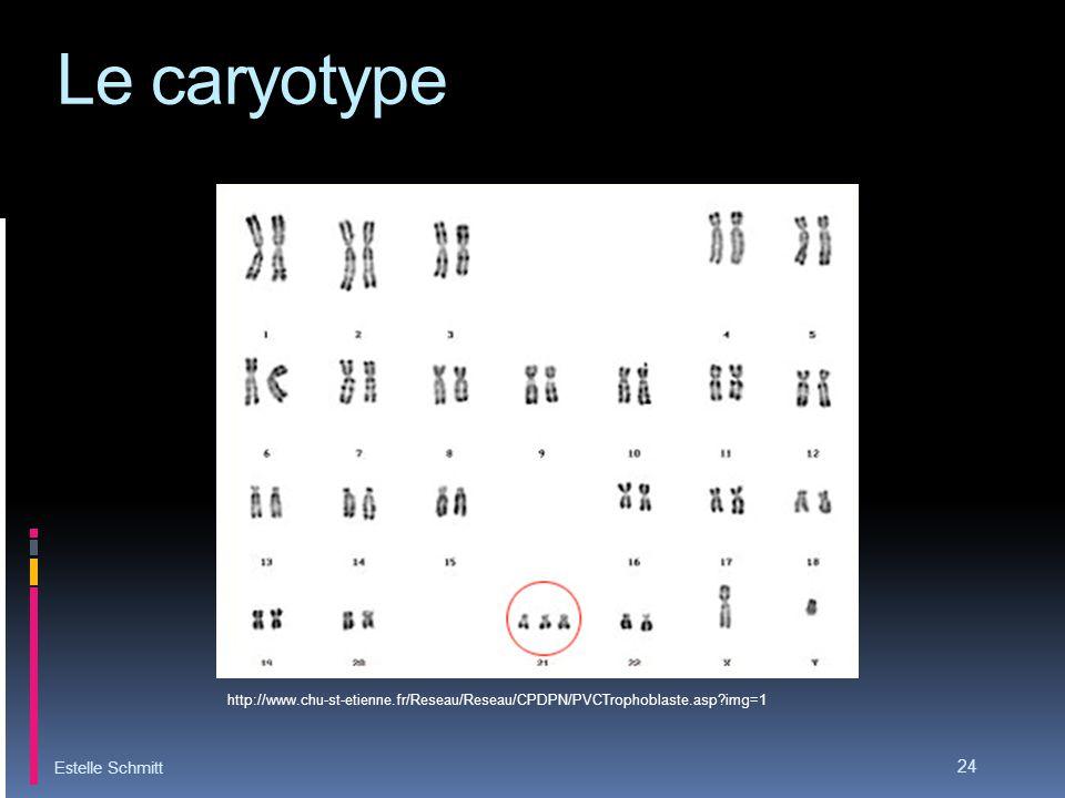 Le caryotype Estelle Schmitt
