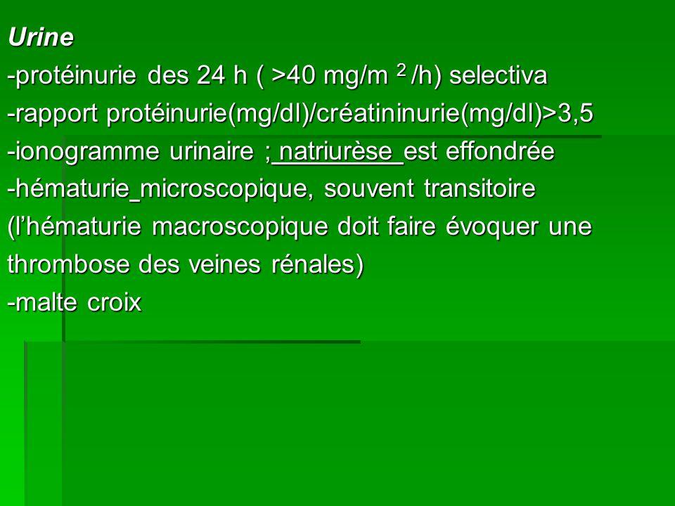 Urine -protéinurie des 24 h ( >40 mg/m 2 /h) selectiva -rapport protéinurie(mg/dl)/créatininurie(mg/dl)>3,5 -ionogramme urinaire ; natriurèse est effondrée -hématurie microscopique, souvent transitoire (l'hématurie macroscopique doit faire évoquer une thrombose des veines rénales) -malte croix