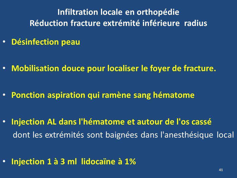 Infiltration locale en orthopédie Réduction fracture extrémité inférieure radius