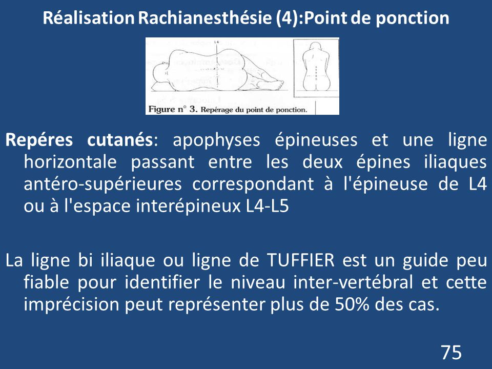 Réalisation Rachianesthésie (4):Point de ponction