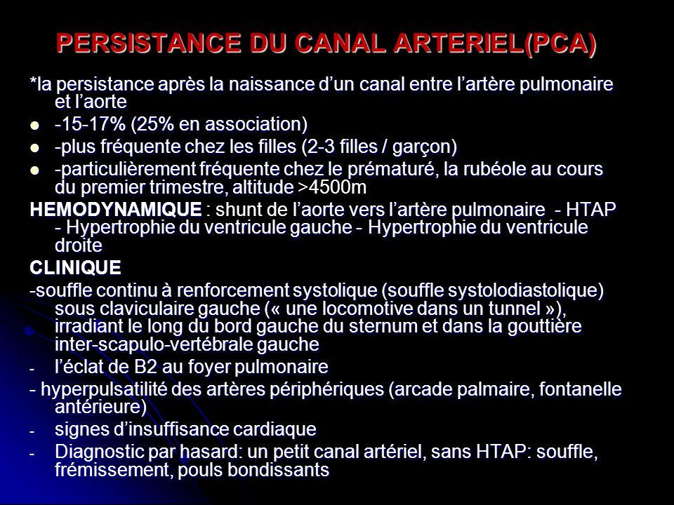 PERSISTANCE DU CANAL ARTERIEL(PCA)