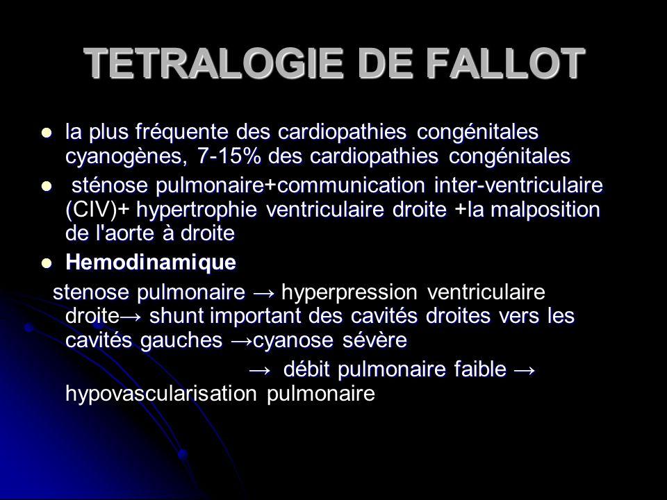 TETRALOGIE DE FALLOT la plus fréquente des cardiopathies congénitales cyanogènes, 7-15% des cardiopathies congénitales.