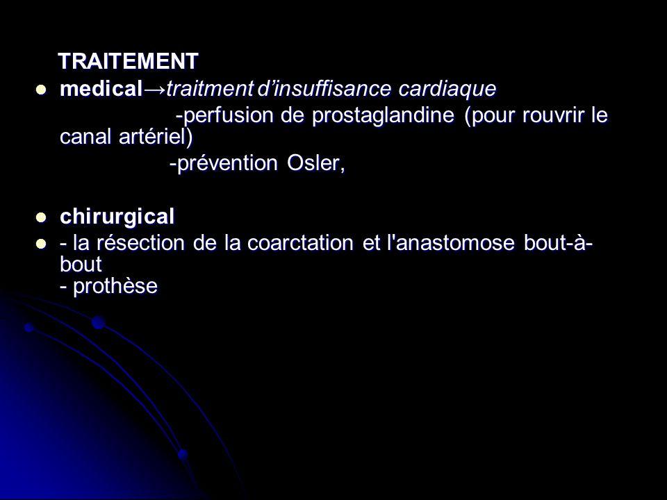 medical→traitment d'insuffisance cardiaque