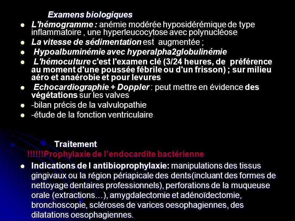Examens biologiques L hémogramme : anémie modérée hyposidérémique de type inflammatoire , une hyperleucocytose avec polynucléose.