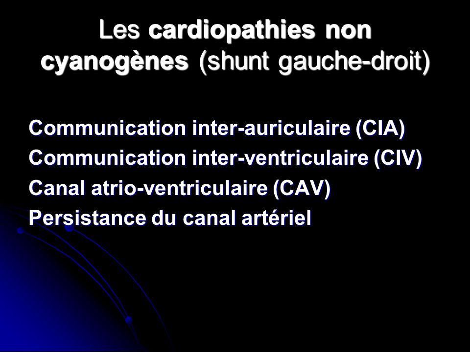 Les cardiopathies non cyanogènes (shunt gauche-droit)