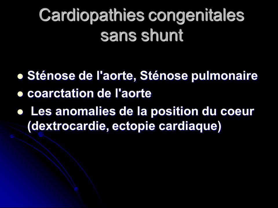 Cardiopathies congenitales sans shunt