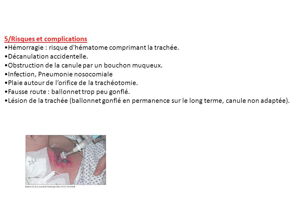 5/Risques et complications