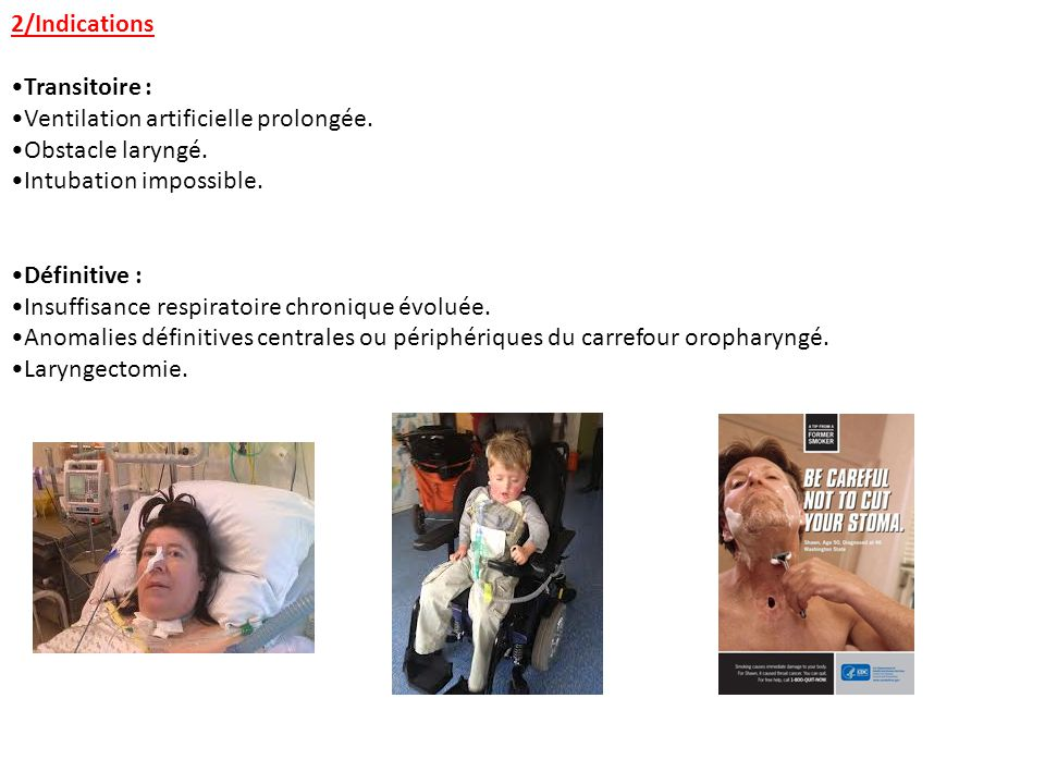 2/Indications Transitoire : Ventilation artificielle prolongée. Obstacle laryngé. Intubation impossible.