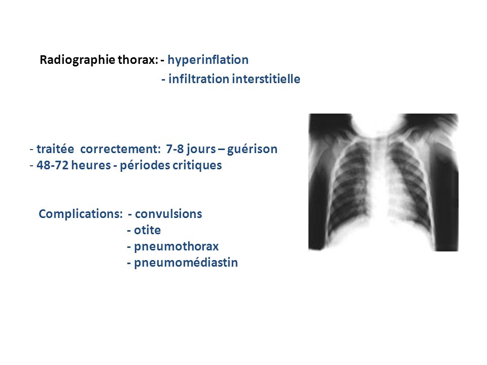 Radiographie thorax: - hyperinflation - infiltration interstitielle