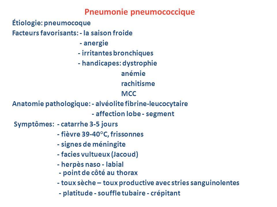 Pneumonie pneumococcique