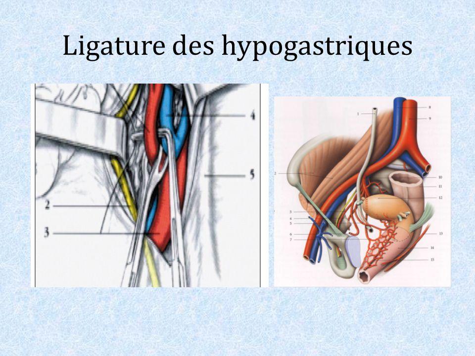 Ligature des hypogastriques