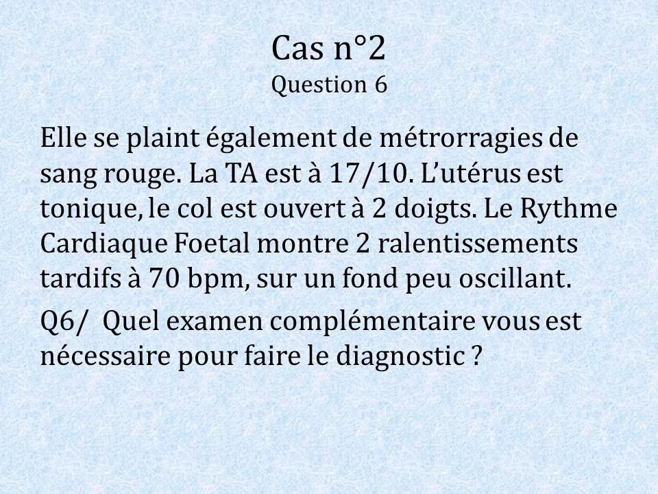 Cas n°2 Question 6