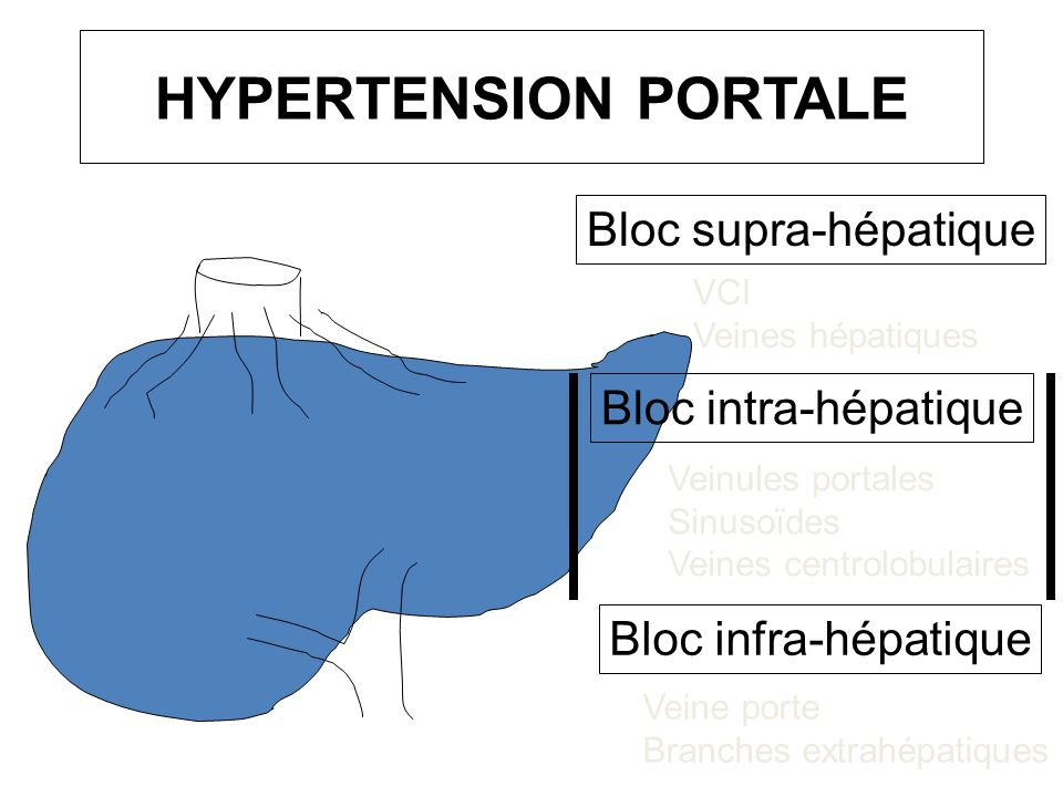 HYPERTENSION PORTALE Bloc supra-hépatique Bloc intra-hépatique