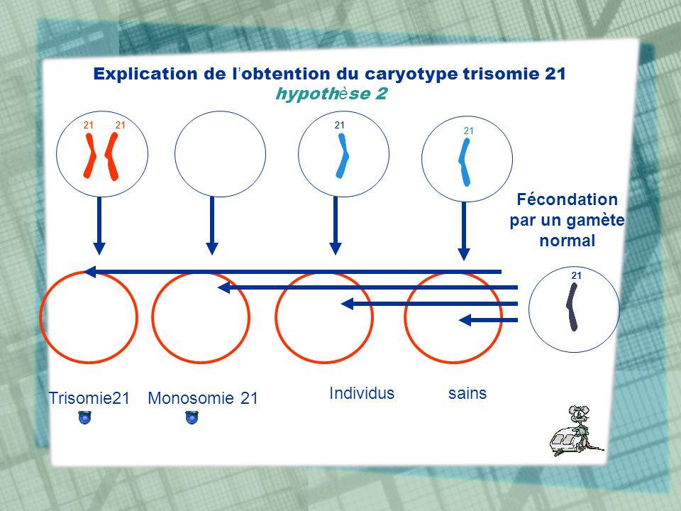 Explication de l'obtention du caryotype trisomie 21 hypothèse 2