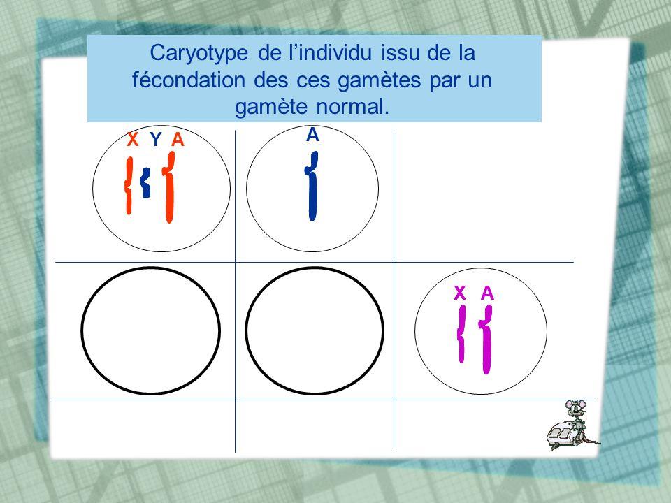 Caryotype de l'individu issu de la fécondation des ces gamètes par un gamète normal.