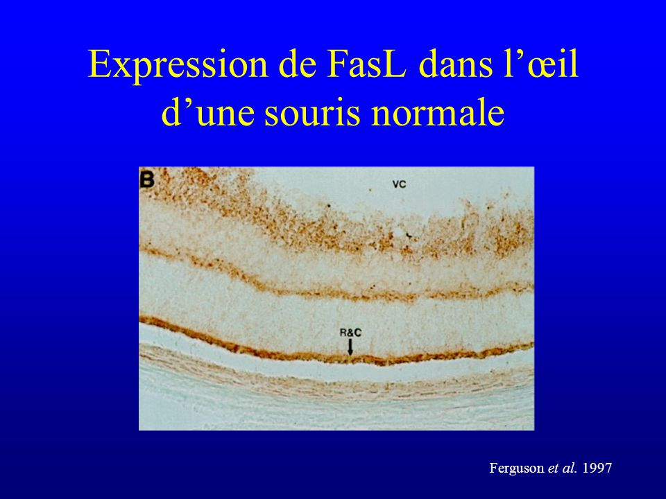 Expression de FasL dans l'œil d'une souris normale