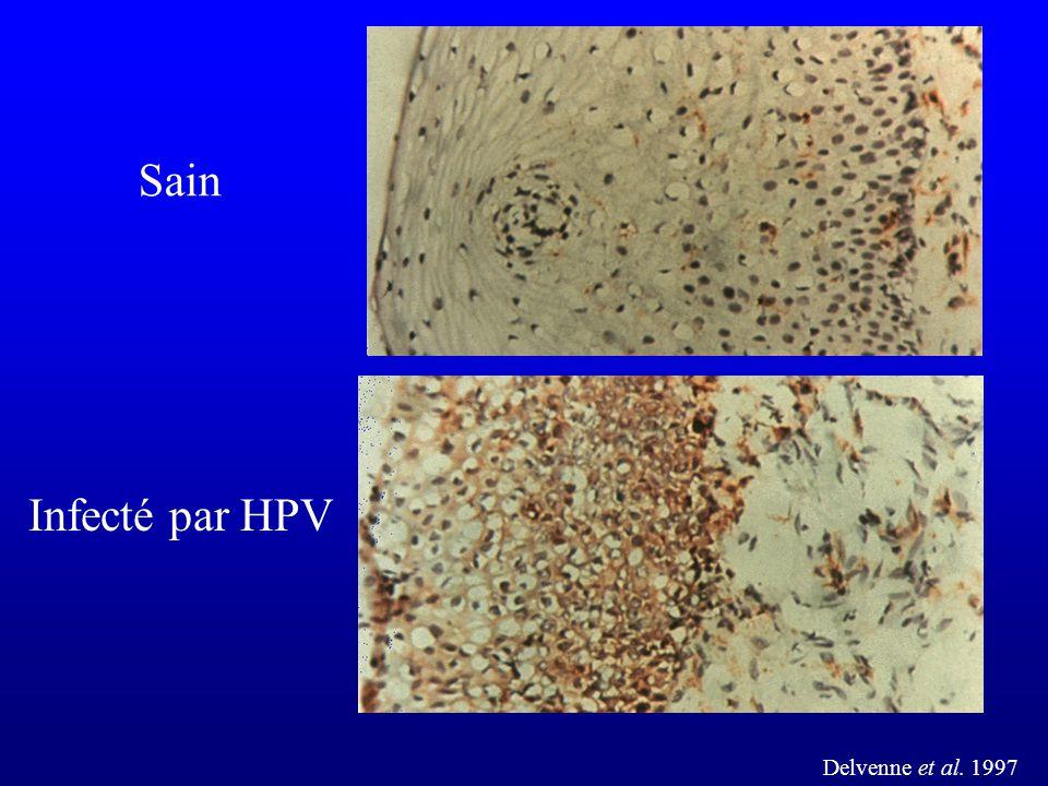 Sain Infecté par HPV Delvenne et al. 1997