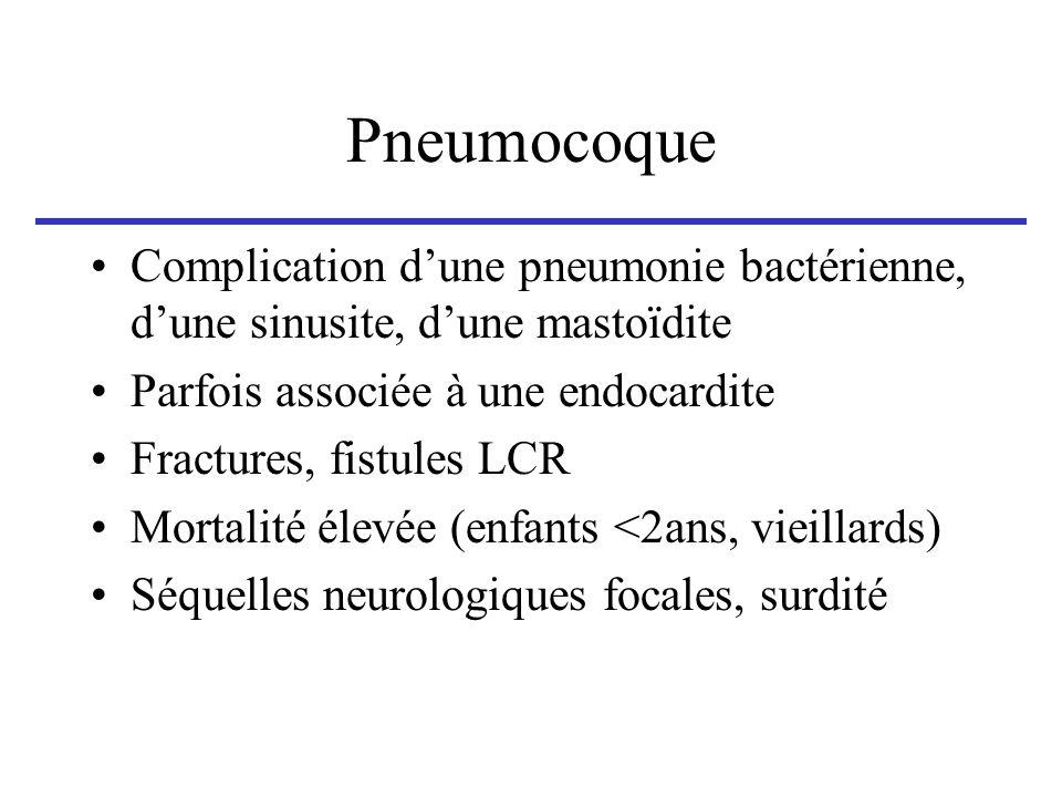 Pneumocoque Complication d'une pneumonie bactérienne, d'une sinusite, d'une mastoïdite. Parfois associée à une endocardite.