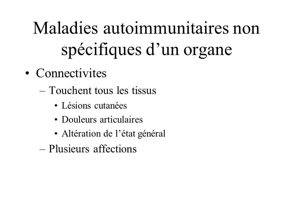 Maladies autoimmunitaires non spécifiques d'un organe
