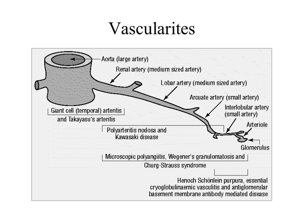 Vascularites